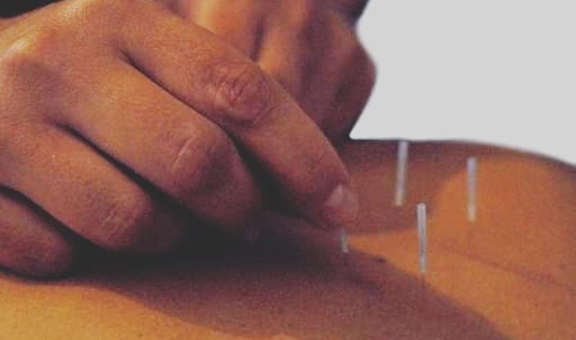Akupunktur Velten